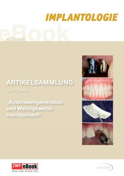 eBook Knochenregeneration