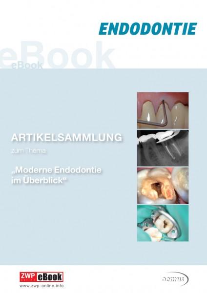 "eBook ""Moderne Endodontie im Überblick"""