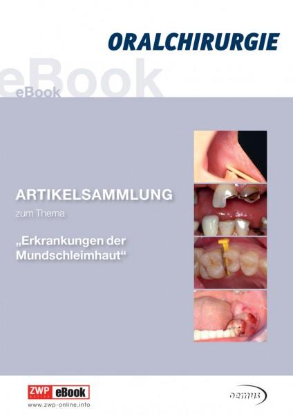 """eBook """"Erkrankung der Mundschleimhaut"""""""