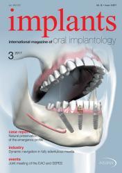Implants 03/2017