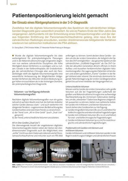 Implantologie Journal Zwp Online Das Nachrichtenportal