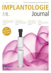 Implantologie Journal 07-08/2019