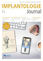 Implantologie Journal 11/2019
