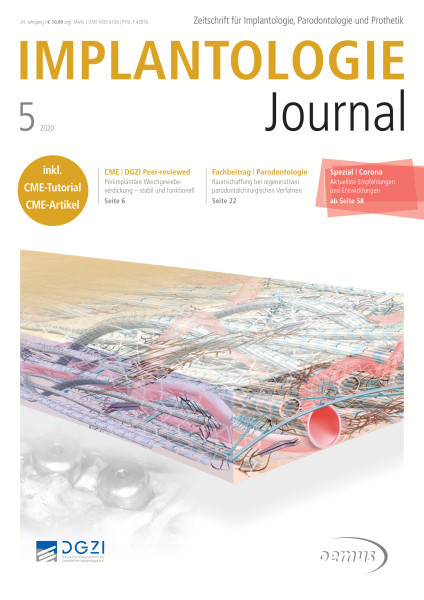 Implantologie Journal