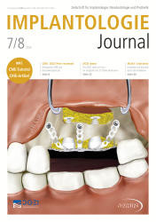 Implantologie Journal 07-08/2020