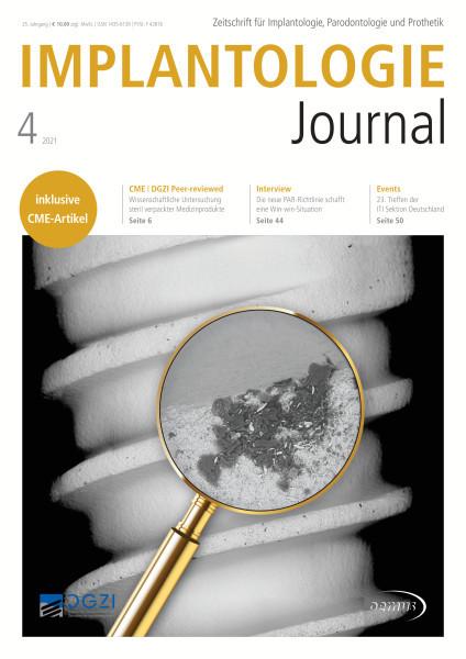 Implantologie Journal