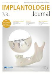 Implantologie Journal 07-08/21