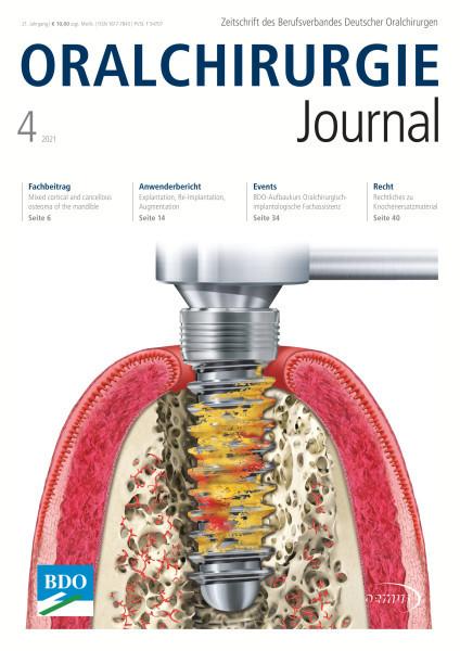 Oralchirurgie Journal