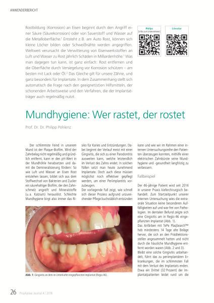 Prophylaxe Journal - ZWP online - das Nachrichtenportal für die ...