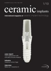 ceramic implants 01/19