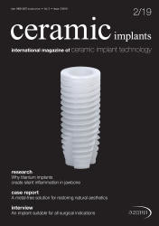ceramic implants 02/19