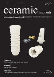 ceramic implants 02/20