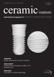 Ceramic Implants English 01/2021