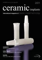 ceramic implants 02/21