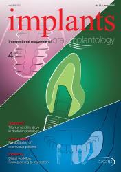 Implants 04/2017
