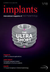 Implants 01 2018