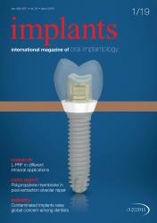 Implants 01/2019