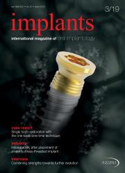 implants 03/19