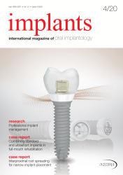 implants 04/20
