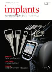 Implants 01/2021
