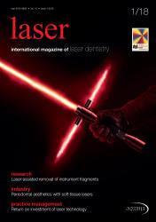 Laser 01 2018