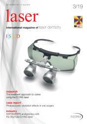 laser 03/19