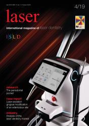 laser 04/19