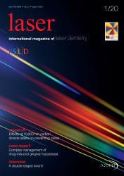 Laser 01/2020