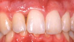 Systematik einer erfolgreichen Parodontitistherapie
