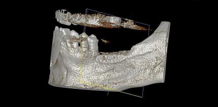 Allogene 3-D-Knochenblockaugmen-tation in Schalentechnik