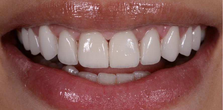 Die Rot-Weiß-Ästhetik – der Rahmen eines perfekten Lächelns