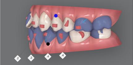 Digitale Behandlungsplanung bei Klasse III mit frontalen Engständen