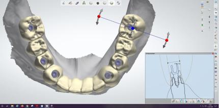 Von der Restauration zum Implantat – Zahntechnik mal andersherum