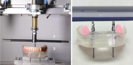 Belastungsausgleich bei implantatgelagerten Freiendprothesen