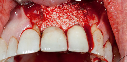 Knochenregenerationsmaterial bei Periimplantitistherapie