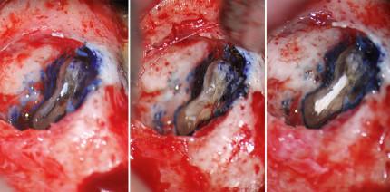 Die endodontische Mikrochirurgie im Wandel