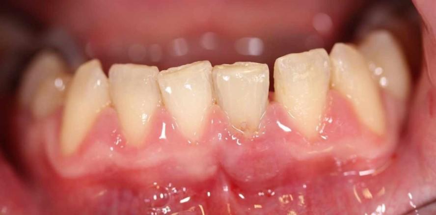 Zahnerhalt: Kombinierte endodontische Therapien