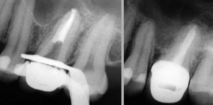 Möglichkeiten und Grenzen in der Endodontie