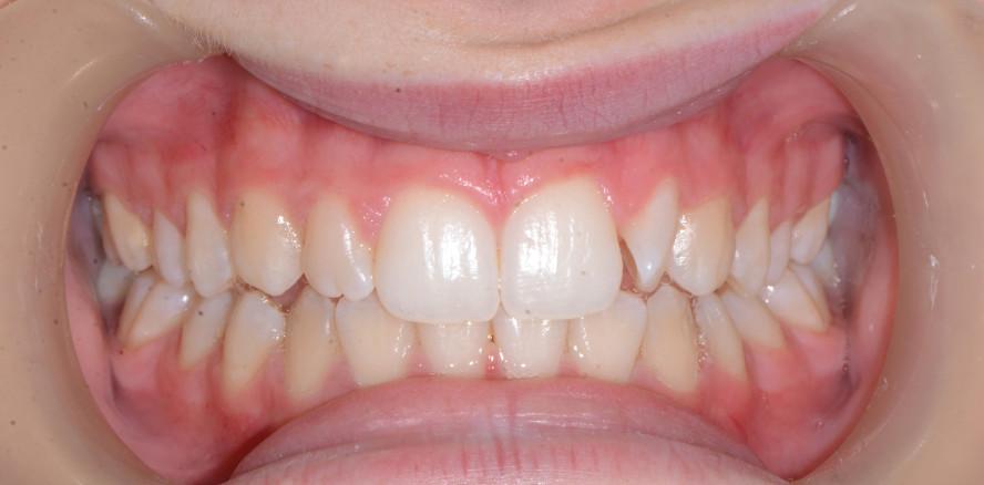 Do-it-yourself-Aligner für leichte Zahnbewegungen