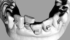 Orthodontische Minitubes zur Korrektur frontaler Engstände