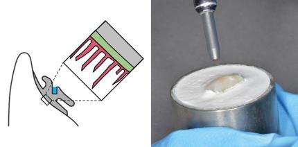 Sandstrahlen: Bessere Verbundfestigkeit von Kunststoff auf Schmelz