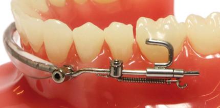 Mesialisierung von Unterkiefermolaren ohne Multibracketapparatur