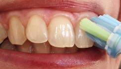 Gute Mundhygiene schützt allgemeine Gesundheit