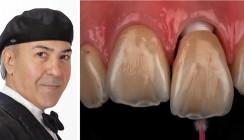 Die Kunst der ultra-ästhetischen Zahnheilkunde
