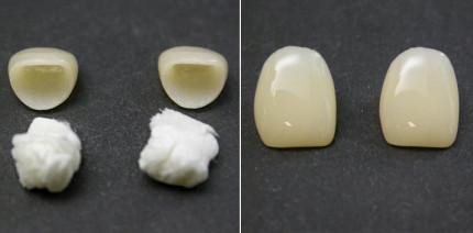 Polieren von zirkonoxidverstärkten Lithiumsilikatkronen