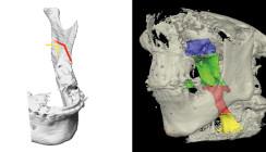 Einfluss der Dysgnathiechirurgie auf Gesicht – Okklusion – Atmung