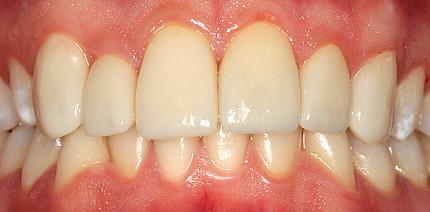 Schöne Zähne durch kombinierte Fluorosetherapie