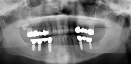 Implantatabformung – Basis zahntechnischer Implantatprothetik
