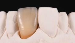 Eine vollkeramische Restauration an Zahn 21