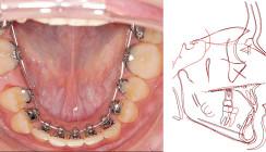 Körperliche Zahnbewegungen und transversale Korrekturen
